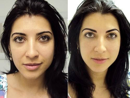 Micro pigmentação Corretiva para Sobrancelhas: fotos